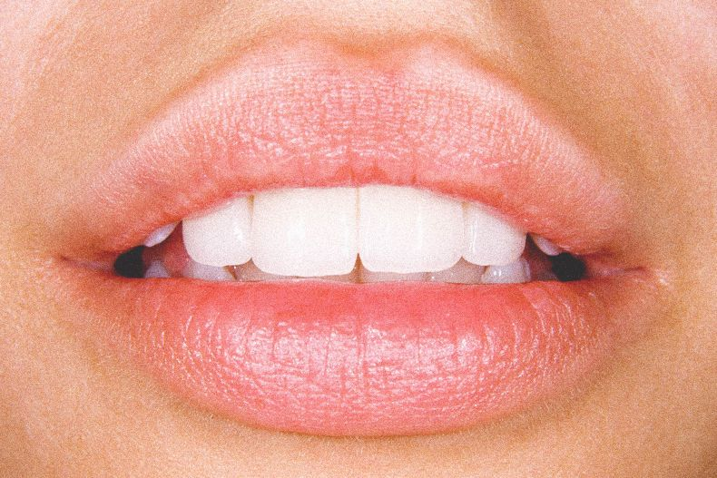 Invisalign what you need to know invisalign teeth