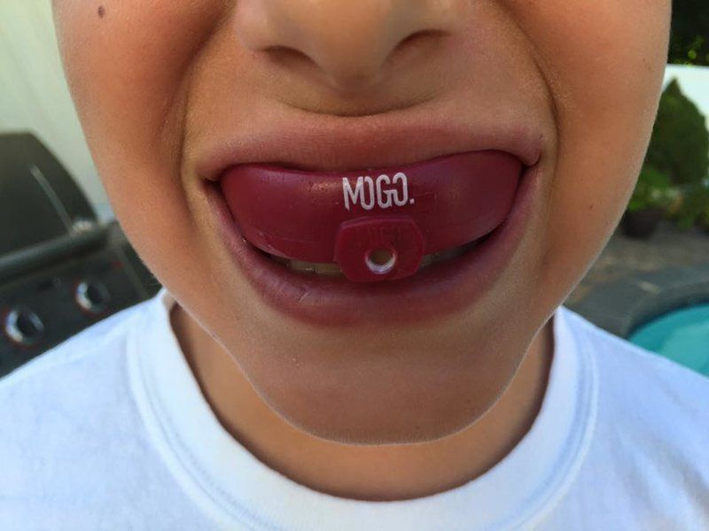 5 key reasons to wear a protective mouth guard in sports
