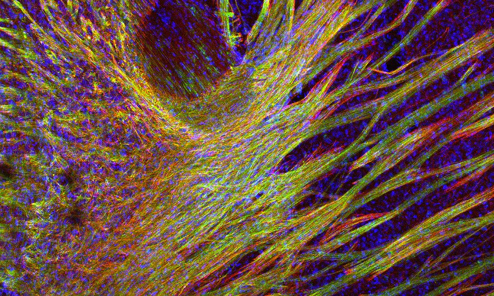 These nerve fibres are covered in a fatty insulating substance called myelin. | 14 Pictures That Will Make You See Your Brain In A Whole New Light