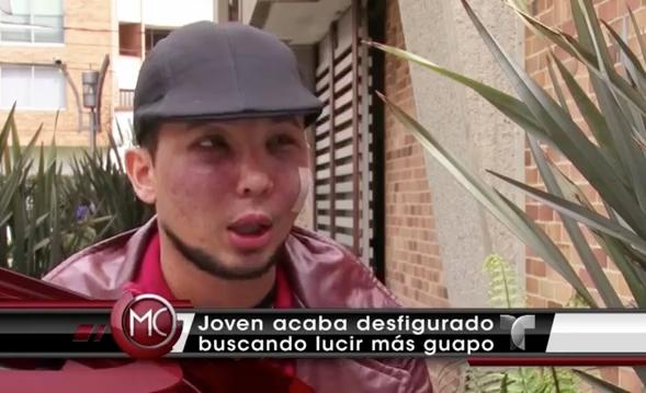 Joven Quería Ser Más Guapo Y Terminó Desfigurado #Video
