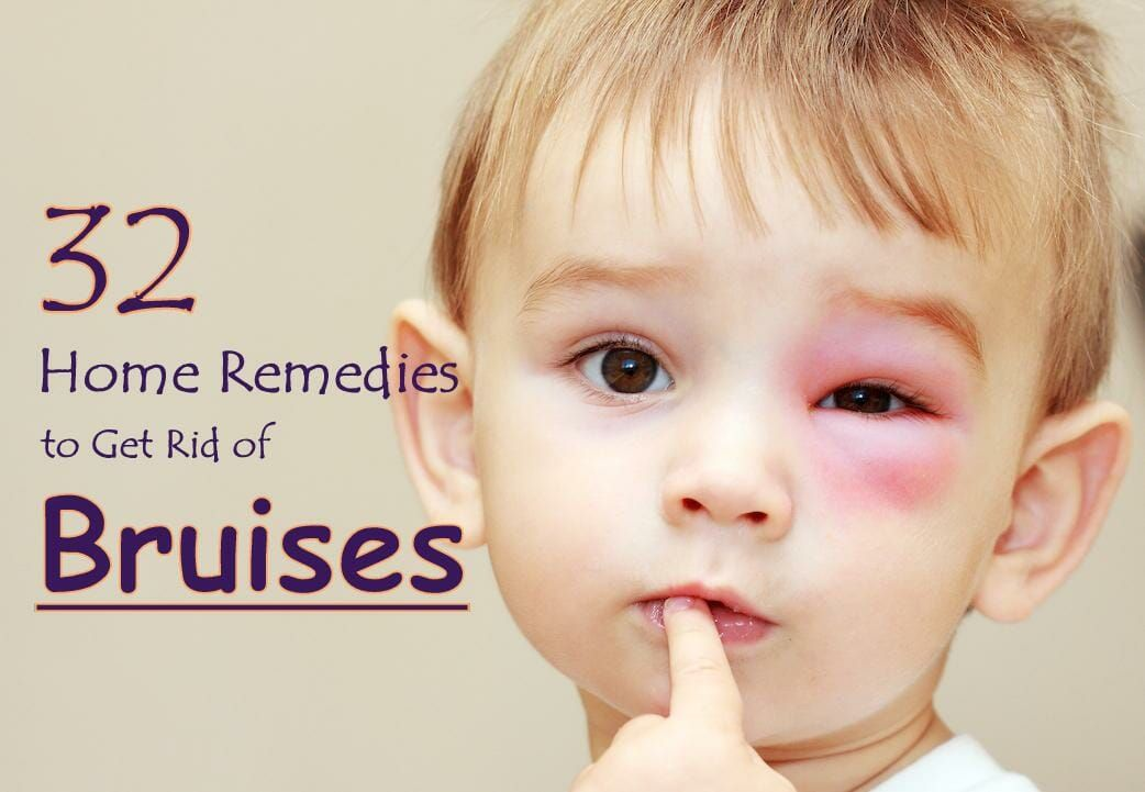 32 proven home remedies to get rid of bruises quickly