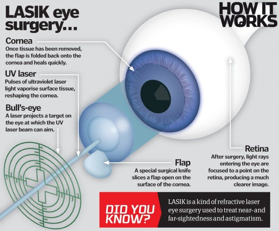How Does Laser Eye Surgery Work How It Works Magazine Lasik Eye Surgery Laser Eye Surgery Eye Surgery