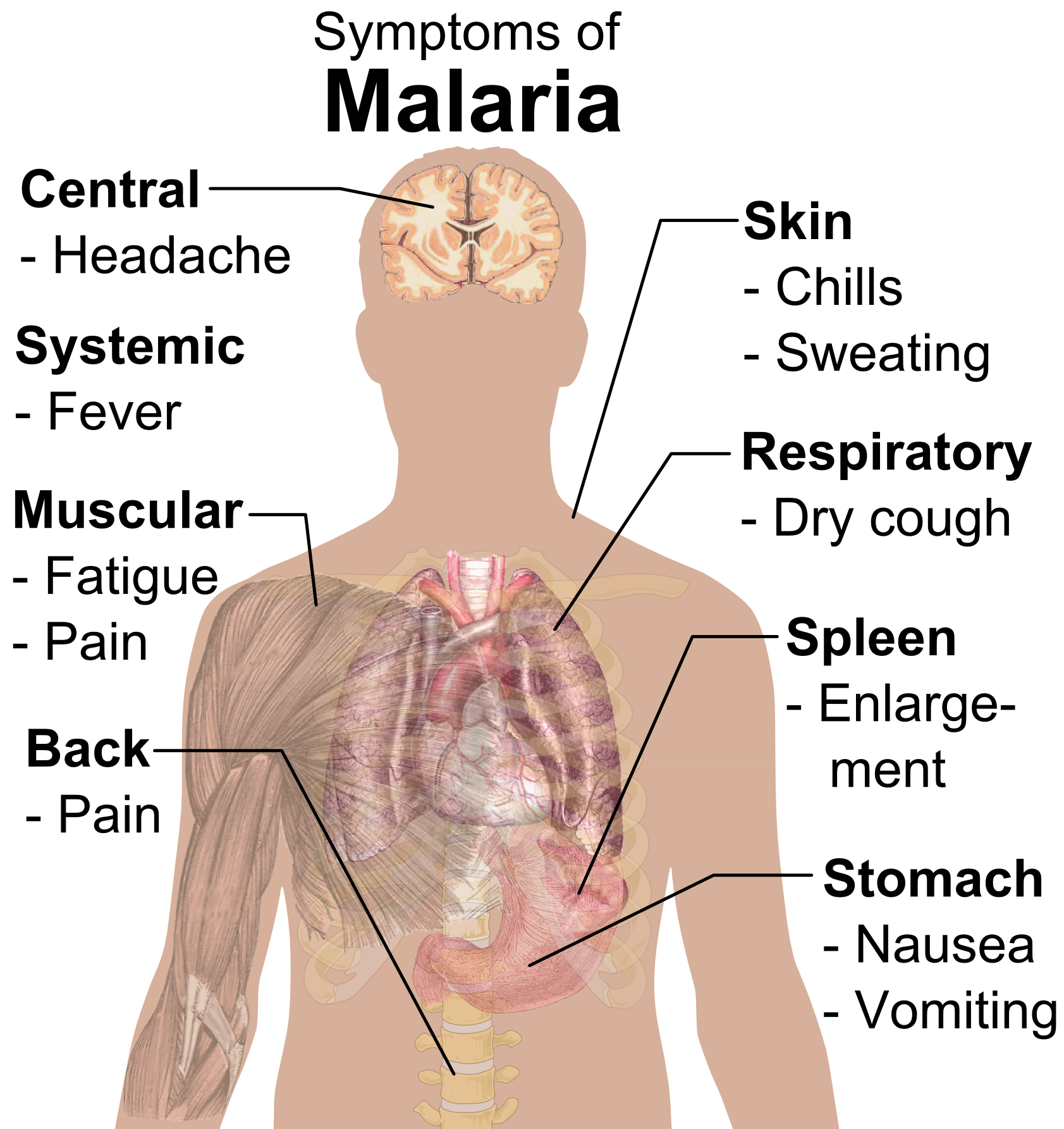 17 best images about malaria doesn t need to be such a great 17 best images about malaria doesn t need to be such a great killer on health vintage illustrations and yellow fever