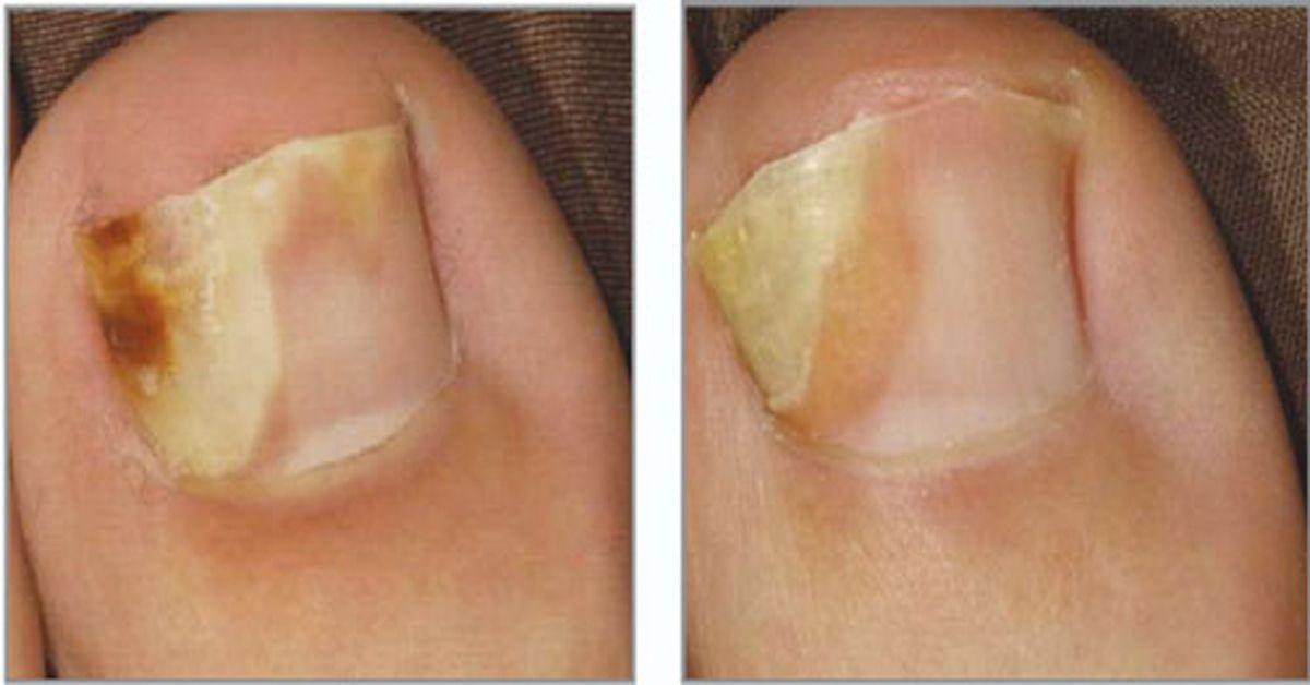 Рецепт врача грибок ногтей