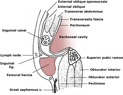 In this sagittal section, a femoral hernia protrudes through the ...