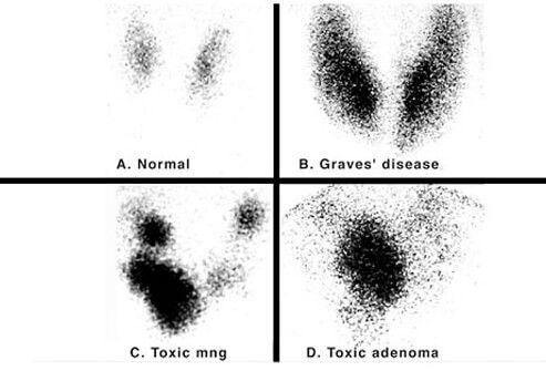graves disease can be diagnosed by a nuclear medicine
