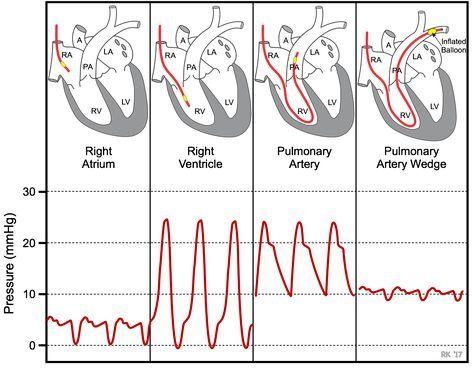pulmonary capillary wedge pressure