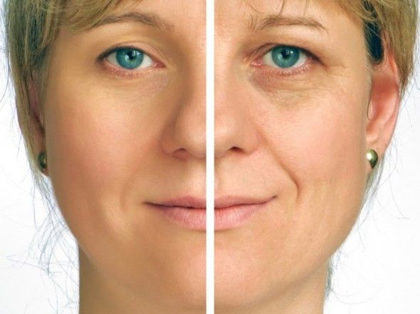 How To Reduce Smile Lines Or Laugh Lines Naturally Skin Care