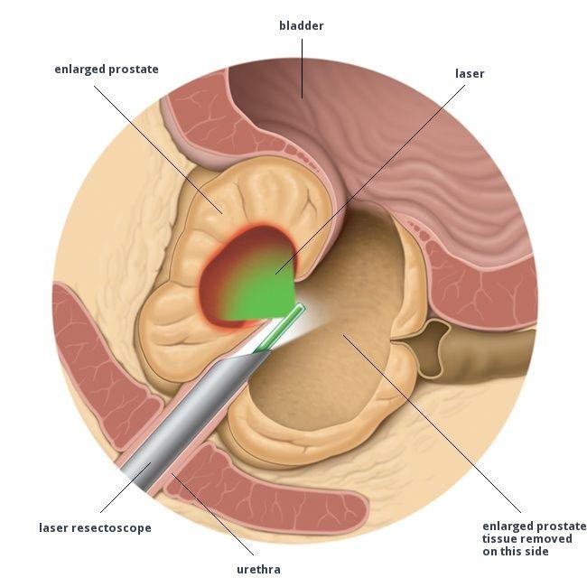 laser surgery for enlarged prostate)