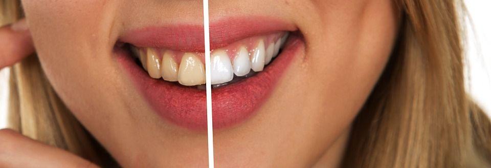vita tänder med bikarbonat