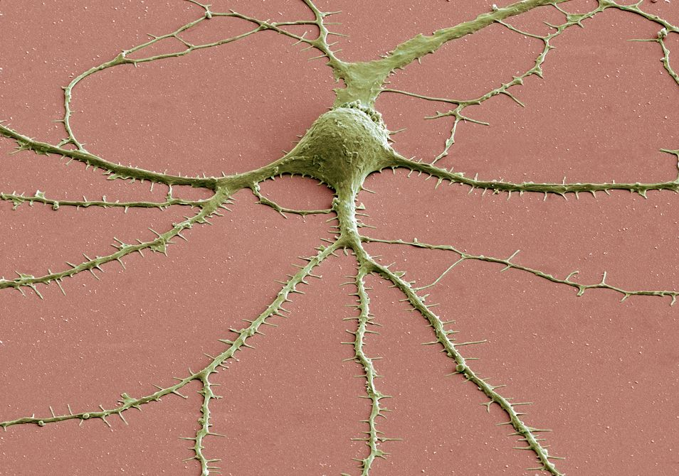 Scanning Electron Microscope Image Of A Neuron's Cell Body