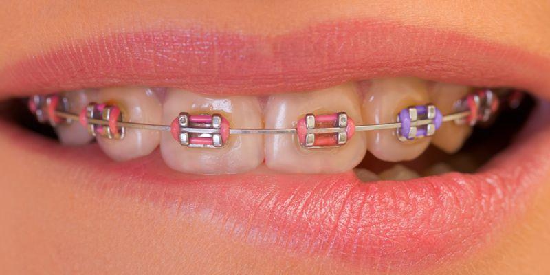 Braces Colors Ideas For Boys dental Better B...