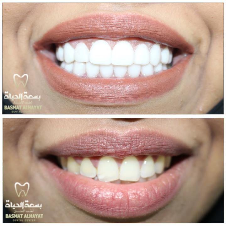 احصل على خصم 50 على توريد اللثة للفكين تنظيف الأسنان فقط 1250 درهم العرض لفترة محدودة واحصل على العديد من ال Quality Makeup Makeup Game Makeup Tutorial
