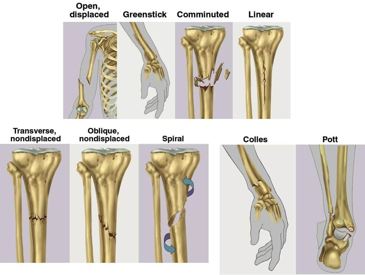Types Of Fractures In Human Body Human Anatomy Study Types Of
