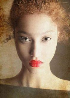 Black Albino woman