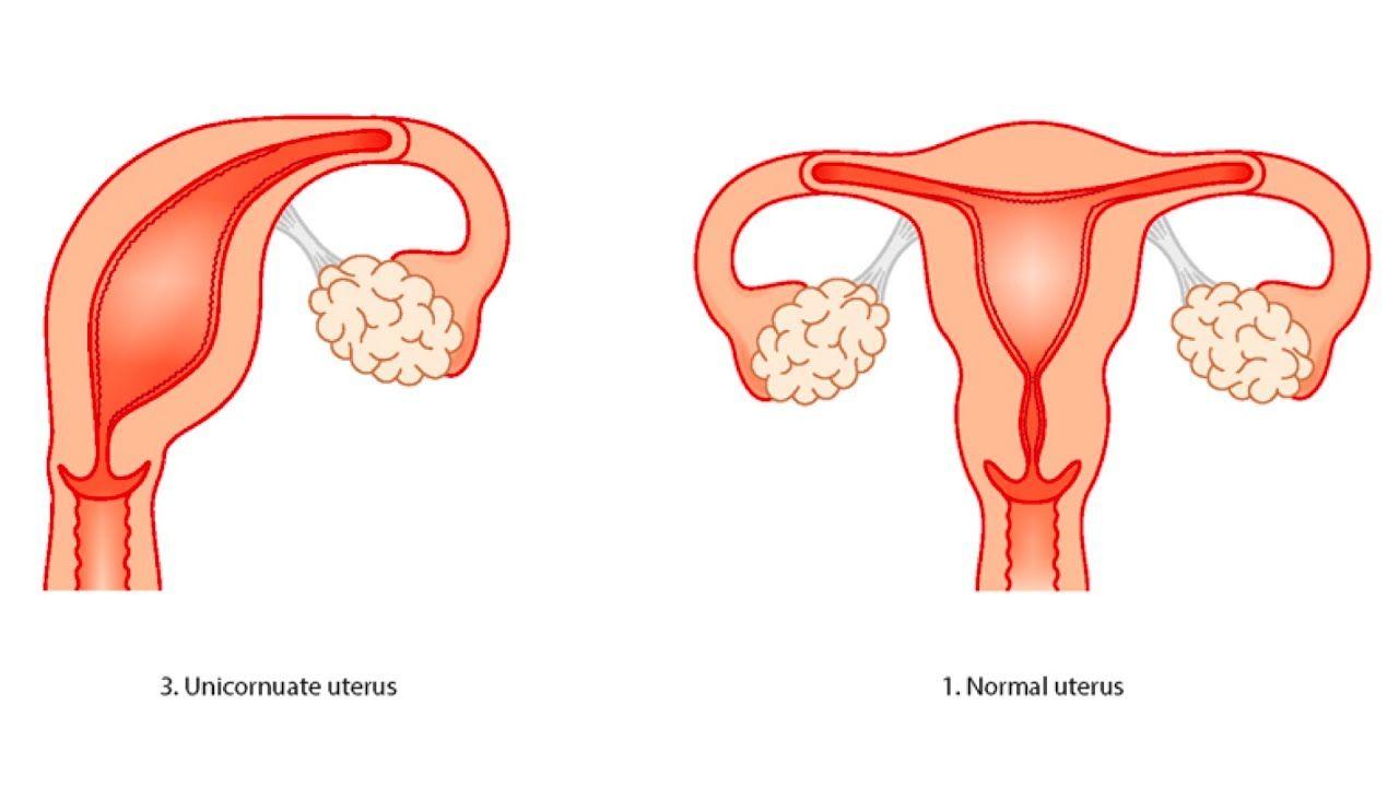 What is a Unicornuate Uterus?   Health   Pinterest