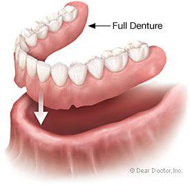 Alternatives for denture adhesive thanx to jay prepforshtf 01 alternatives for denture adhesive thanx to jay prepforshtf solutioingenieria Images