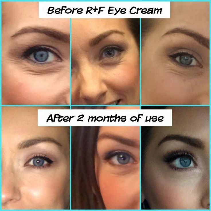 The Eyes Have It How To Get A Youthful Rested Look Rodan And