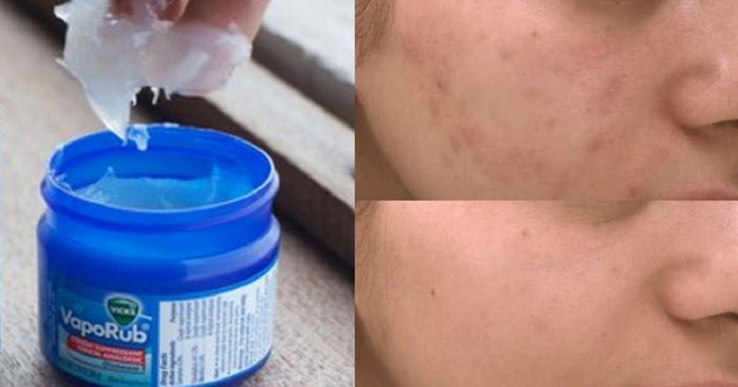 Mom Always Had Vicks VapoRub At Home. Here Are 40 Unexpected Problems It Can Solve #skintreatments