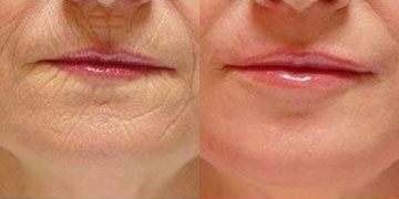 SSSSS FFFFF INCREASE COLLAGEN: Retin A/retinol topical application increases collagen production. 5% Pro-Niacin - very potent anti-oxidant agent & allows 4 conversion of Nicotinic Acid, wh plays role in energy metabolism 2 repair skin damage & cell generation. Carbon dioxide laser resurfacing & injection of hyaluronic acid moisture-retaining acid that occurs naturally in skin. Each depends on interaction of skin cells (fibroblasts) w/collagen they produce.
