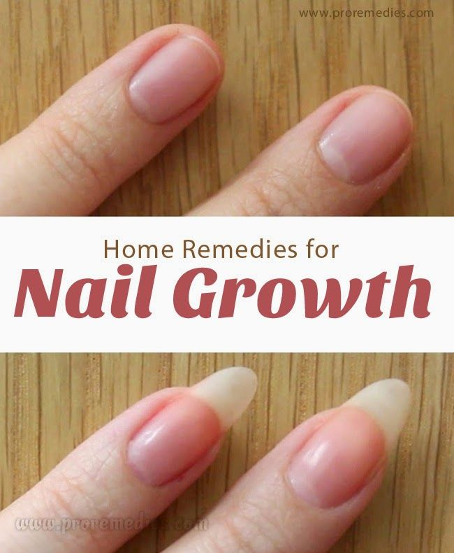 Home Remedies For Nail Growth   Pro Remedies   Nails   Pinterest ...