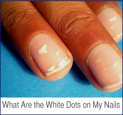 What Are the White Dots on My Nails? | Ideas for the House ...