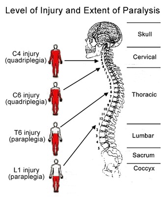 Spinal Cord level of injury and extent of paralysis