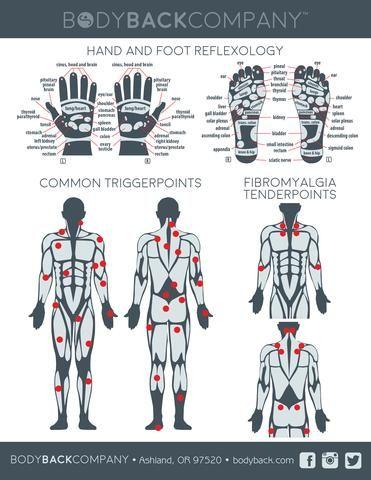 Trigger Point Reflexology Fibromyalgia Treatment Chart
