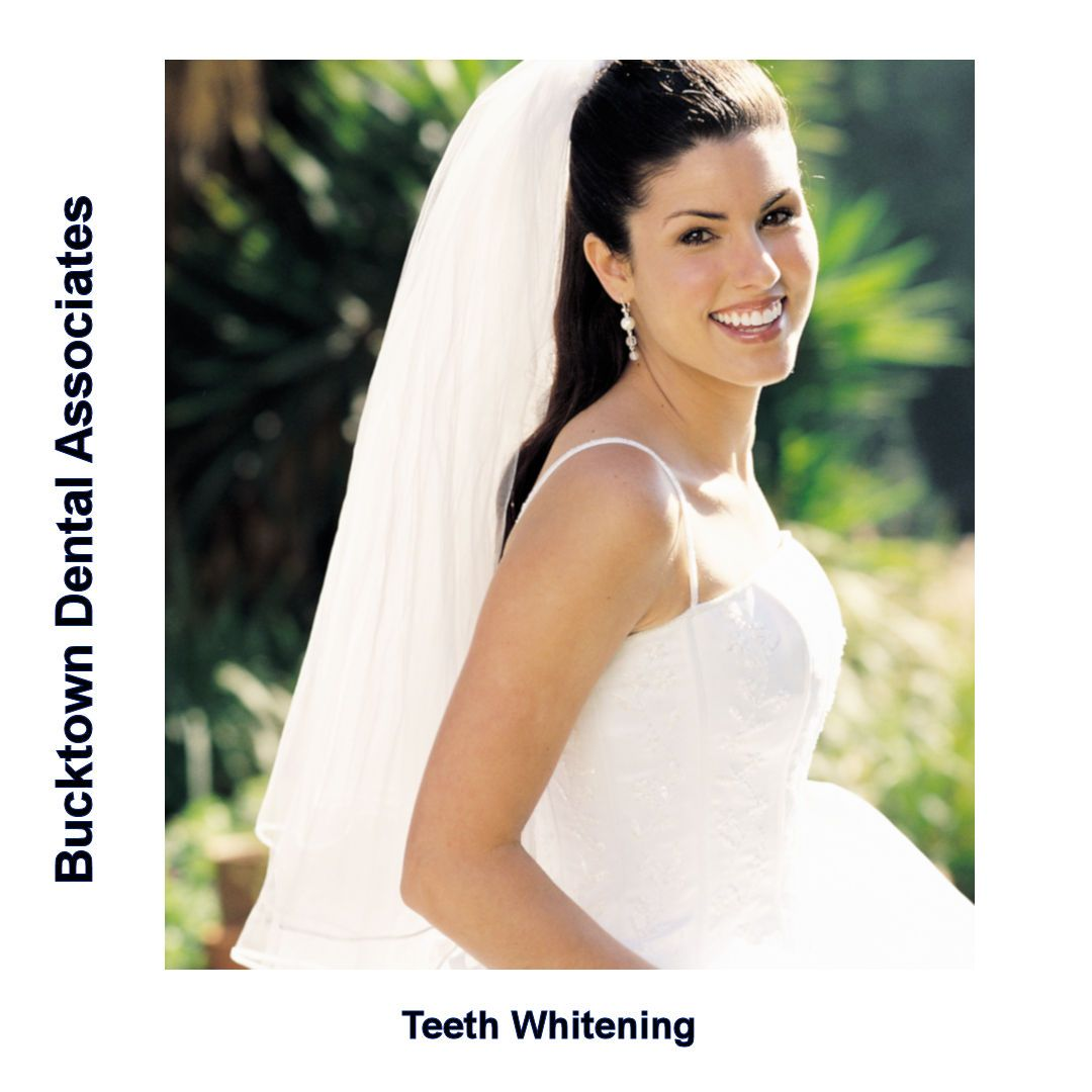 Wedding White Teeth: #Teethwhitening Can Give You A Bright Smile In Your