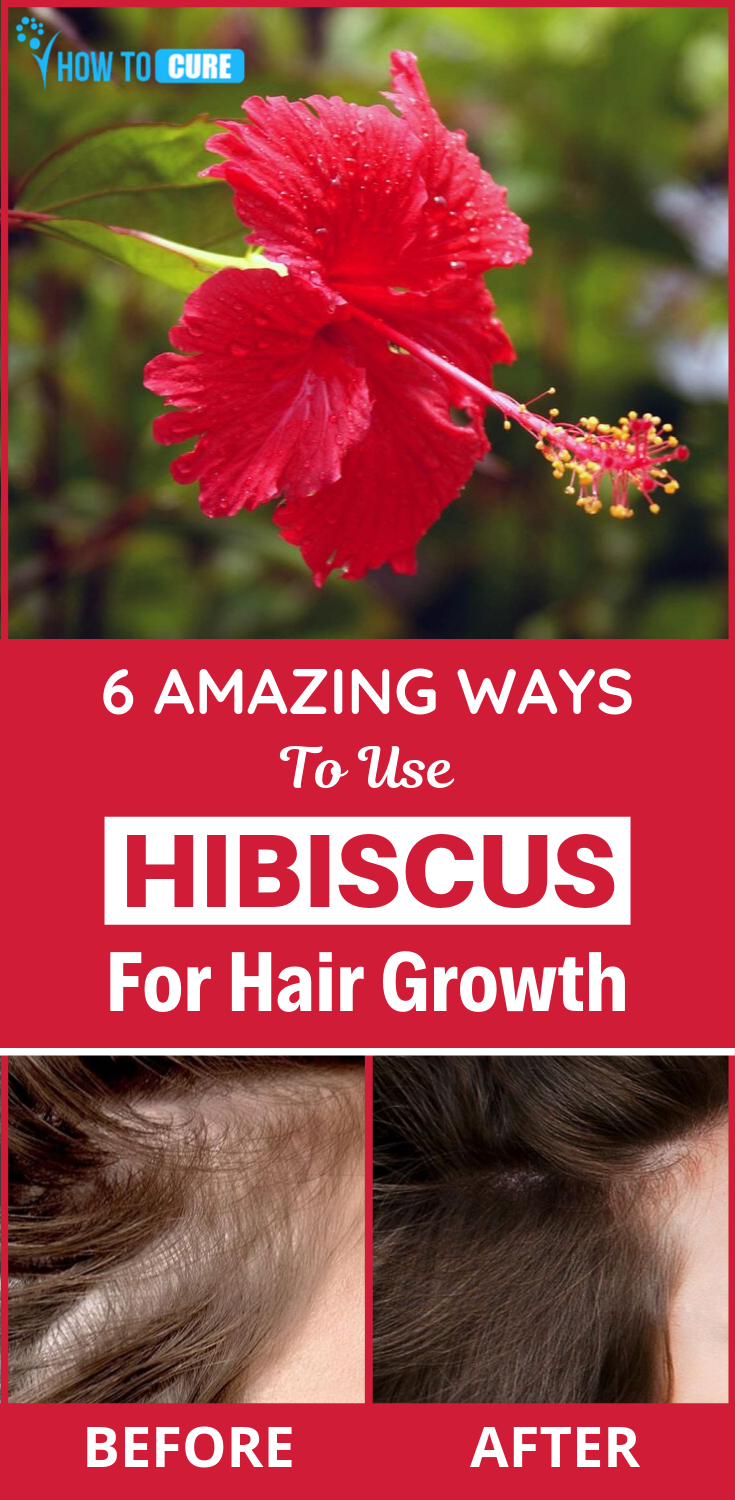 Hibiscus For Hair Loss 6 Surprising Benefits About Hibiscus Hair Fall Remedy Hair Loss Cure Hair Growth