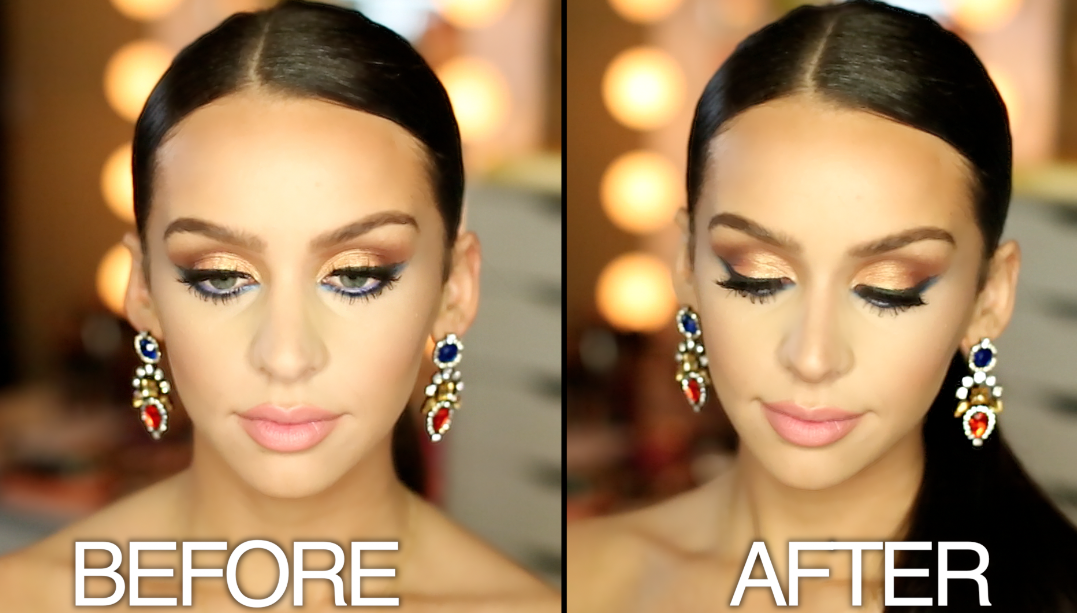 How To Non Surgical Nose Job! in 2020 Nose job