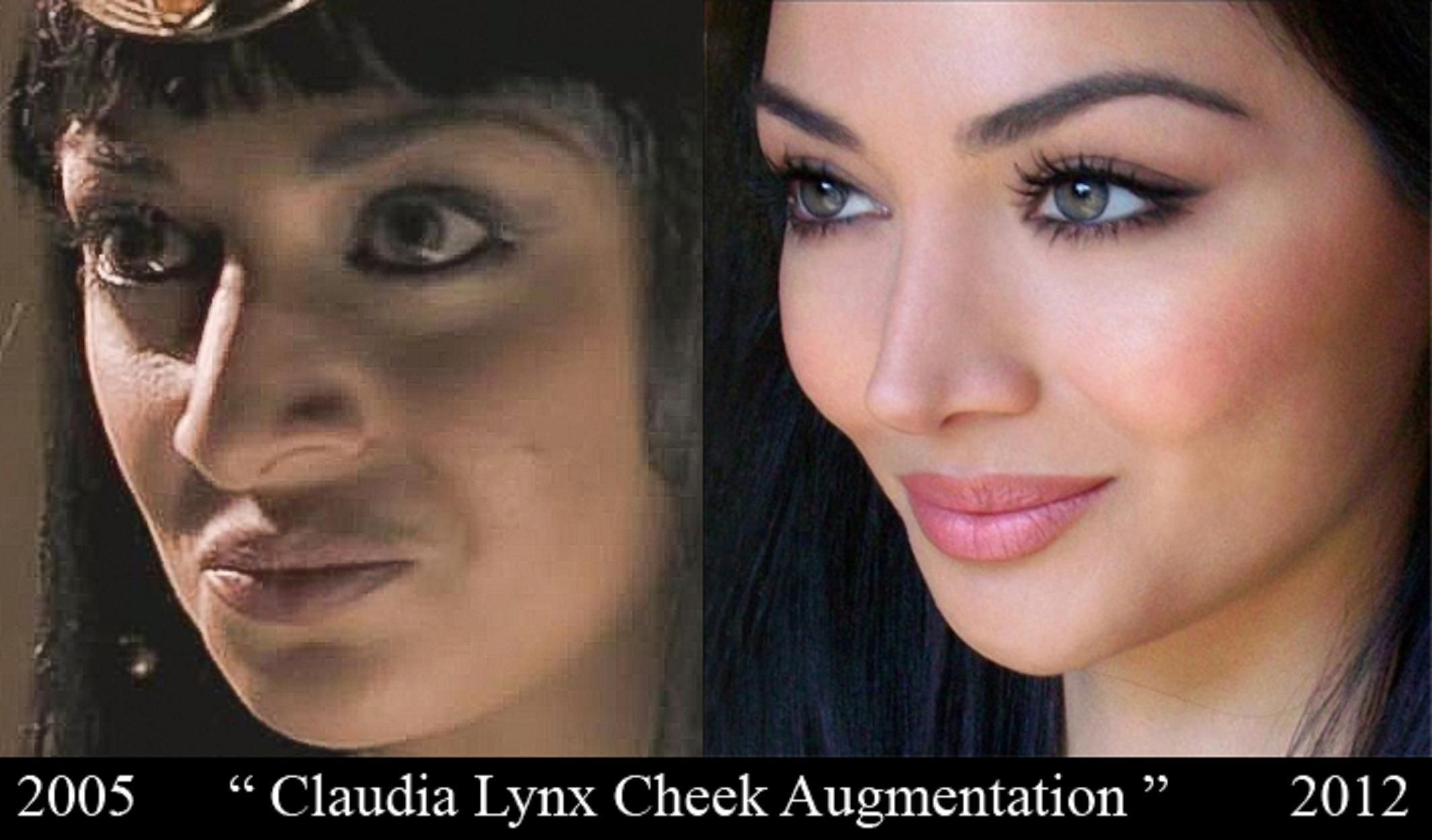 before and after: cosmetic surgery | plastic surgery | pinterest