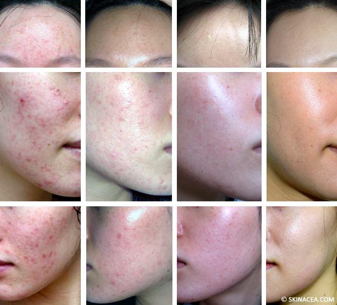 fish oil can remove acne scars)