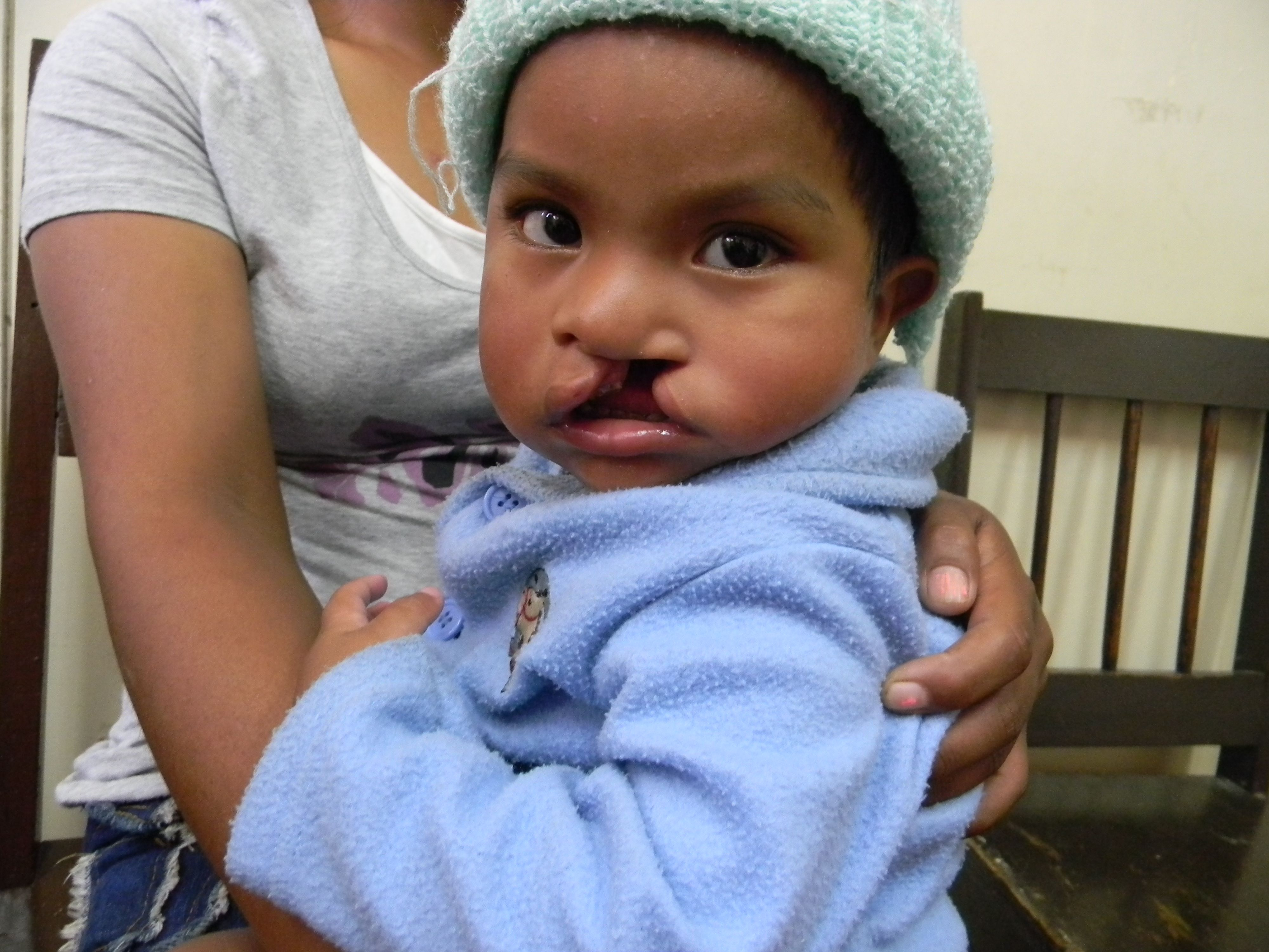 One Of The Hundreds Of Nicaraguan Kids We Have Been Able To Help With Cleftlip Surgery Medicalmission Medical Missions Cleft Lip New Face