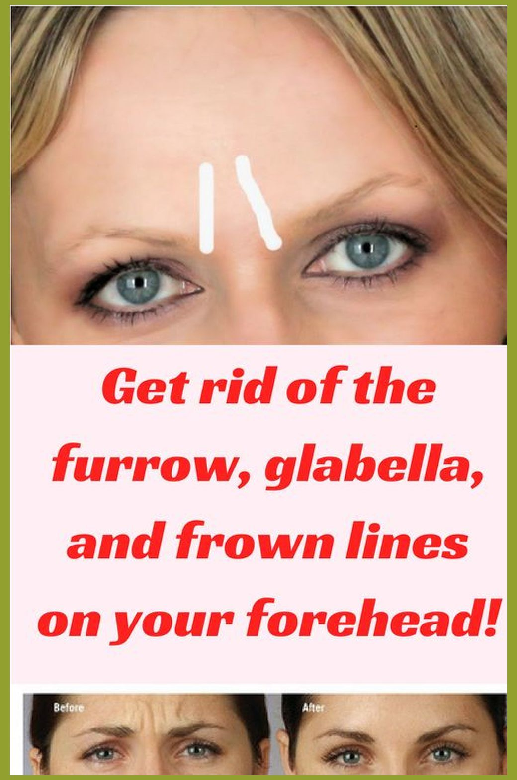 Forehead wrinkles means the furrowlike lines created by