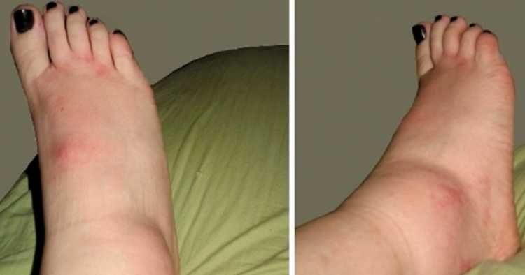 Pés reduzir inchaço tornozelos o e nos para medicamentos