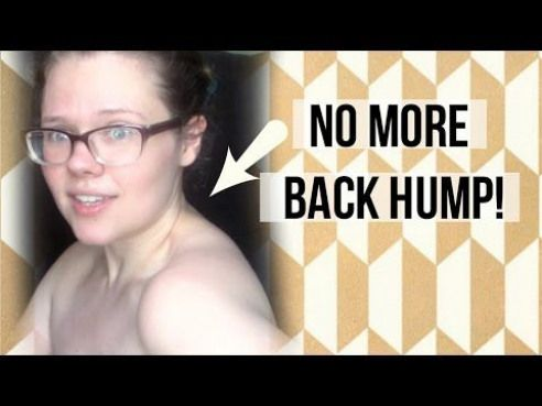 28f01d1784 How to fascia blast the hump - YouTube Posture Correction Exercises