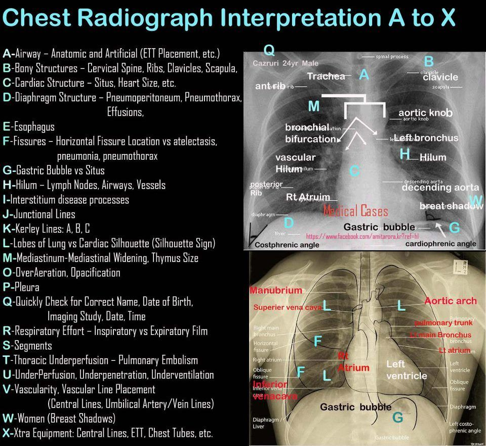 Medical abbreviation nt pertaining to chest - How To Read A Chest Xray Mnemonic