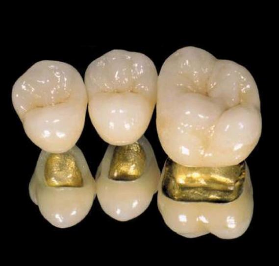 What Is A Pfg Dental Crown Dental Crowns Dental Dental Ceramics