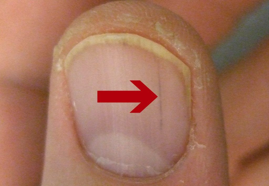 What Causes Red Streaks Under Nails