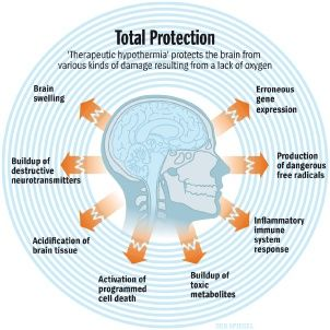 A Rediscovered Way To Save Lives Cooling The Brain For Its Own Good Gene Expression Neurotransmitters Brain Tissue