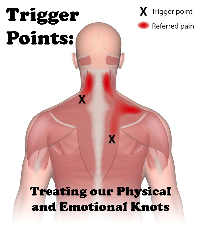 Trigger points are grumpy knots in our muscles and heart ...