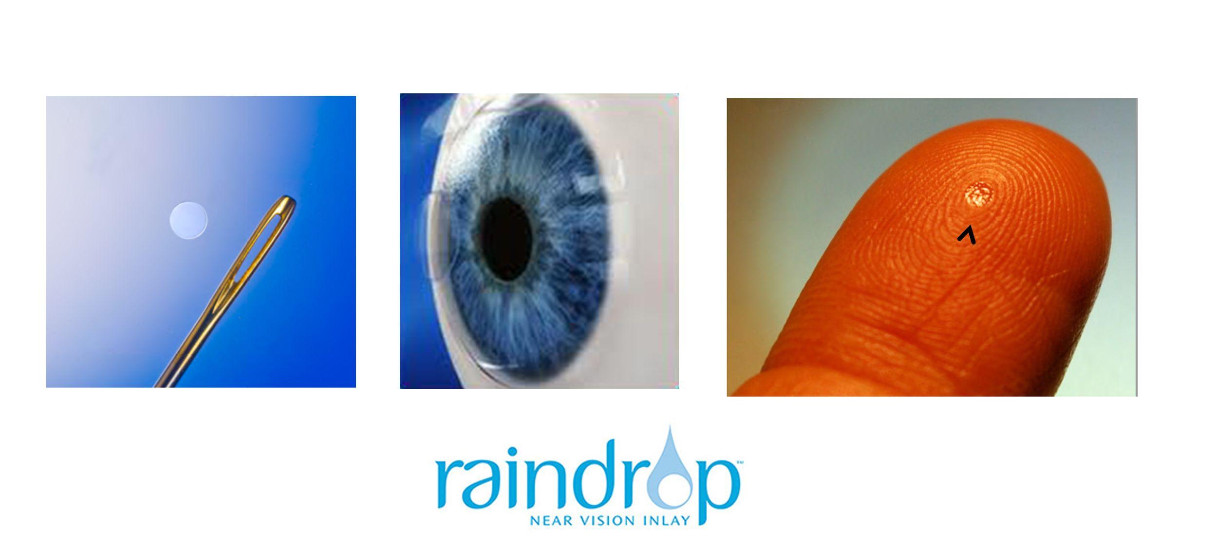 Corneal Inlay Raindrop, Revision Optics Ojos, Cirugia y