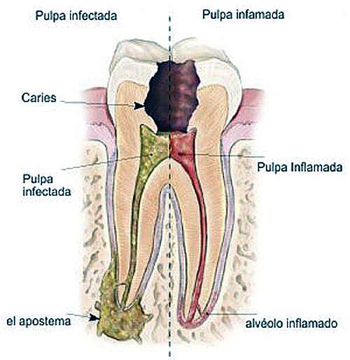 Todo lo que debes saber en los tratamientos dentales de Tot Dental ...