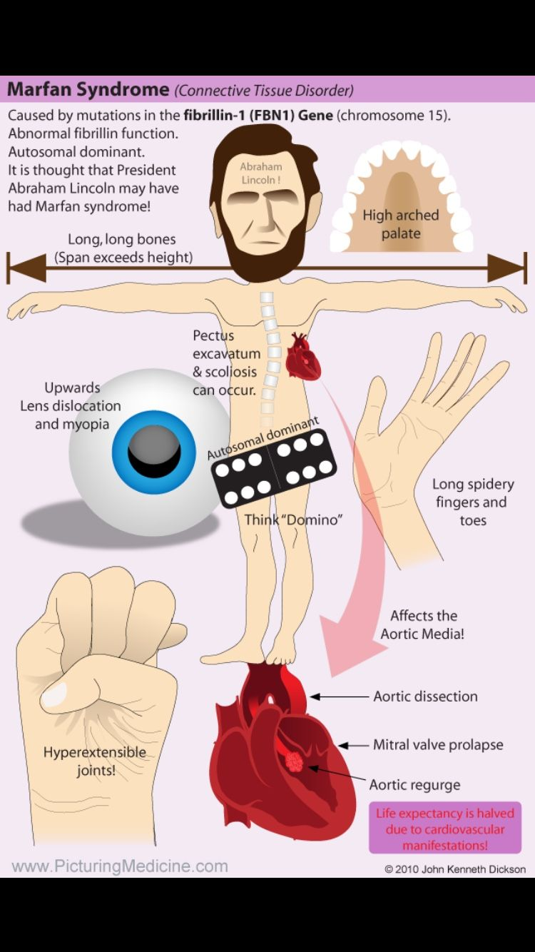 Pin By Thanu On Marfan Syndrome