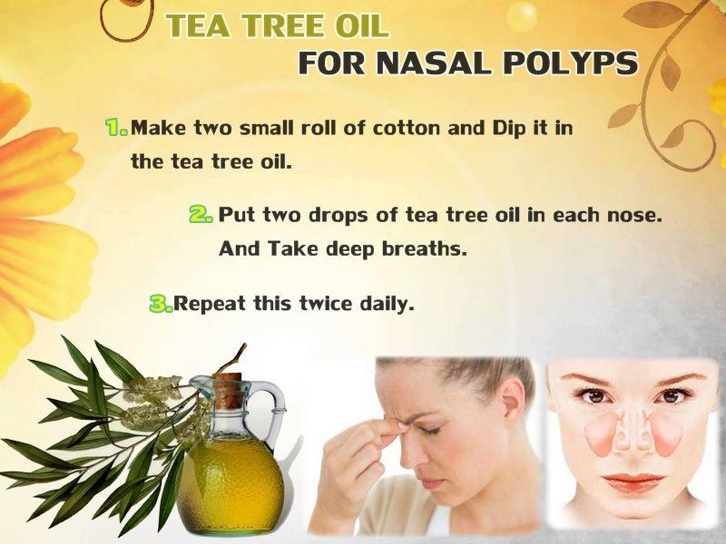 Nose polyps home remedy