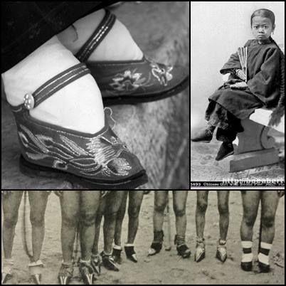 Pés de Lotus. Eram chamados assim porque lembravam o formato da flor de Lotus. Esta era uma antiga cultura chinesa, quando os pés das meninas, a partir dos 6 anos, eram enfaixados para atrofiar os pés e impedir o seu crescimento. Os pés pequenos eram requisitos para se conseguir um bom casamento.