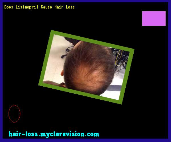 Does Lisinopril Cause Hair Loss 11 - Hair Loss Cure ...