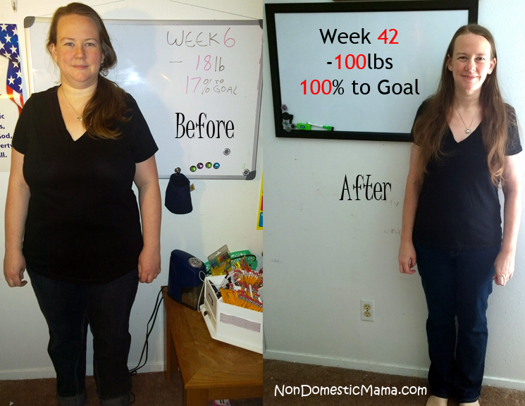 Do i have to lose weight before gastric sleeve picture 6