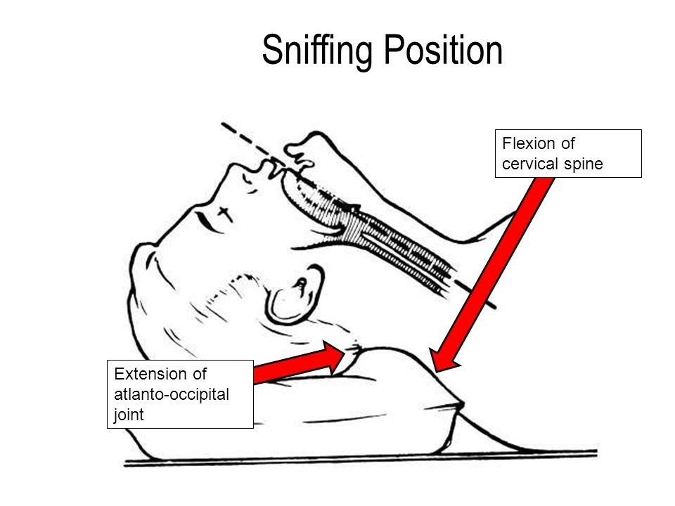 Bildresultat för sniffing position for intubation
